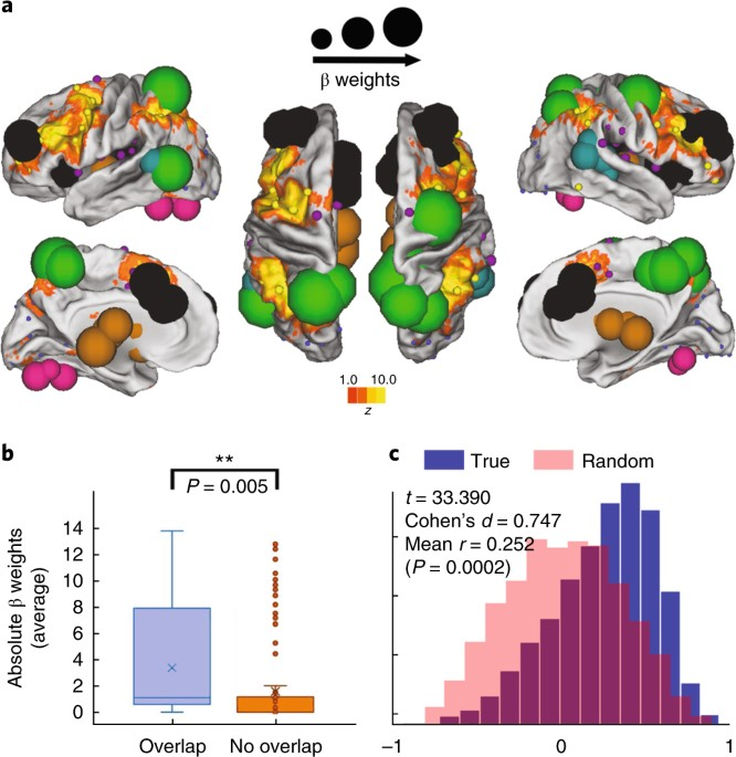 Maternal IL-6 during pregnancy can be estimated from newborn brain ...