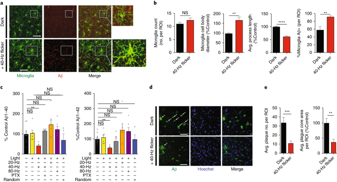 40 hz light gamma oscillations a sections of visual cortex stained with antiiba1 green and antiaβ 12f4 red antibodies in 3monthold 5xfad mice exposed to dark top or 40hz noninvasive light flicker recruit microglia reduce
