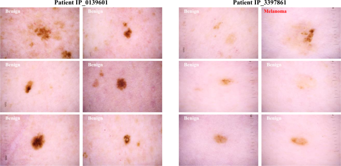 Skin cancer benign vs malignant - in2constient.ro, Skin cancer benign vs malignant