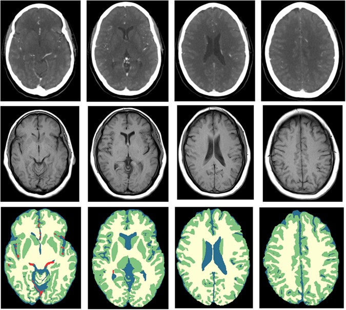 White Matter and Gray Matter Segmentation in 4D Computed Tomography ...