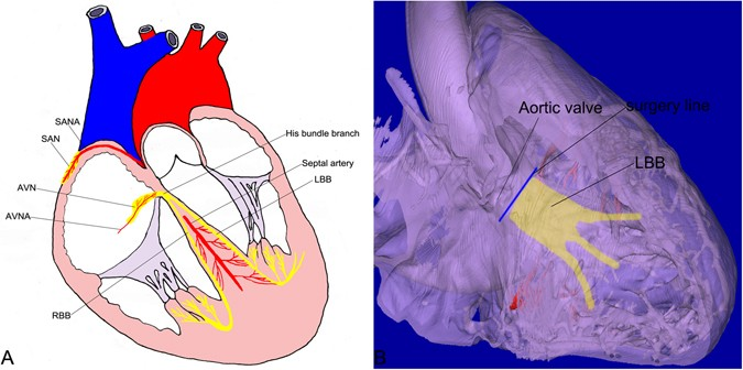 Locating the human cardiac conduction system using a 3d model of its a diagram of the cardiac conduction system ccs and its nutritious arteries b the 3d model illustrates that during some surgeries surgeons should ccuart Choice Image