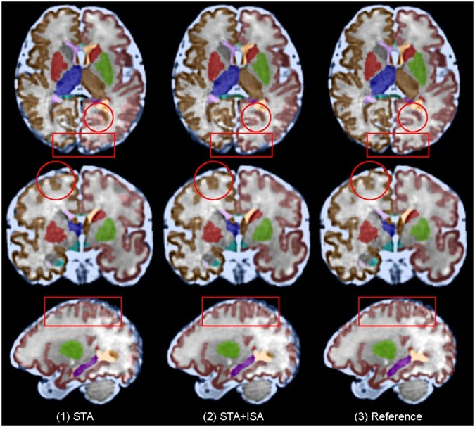 A Normative Spatiotemporal Mri Atlas Of The Fetal Brain For