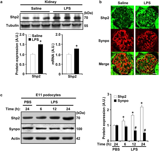 Protein tyrosine phosphatase Shp2 deficiency in podocytes attenuates