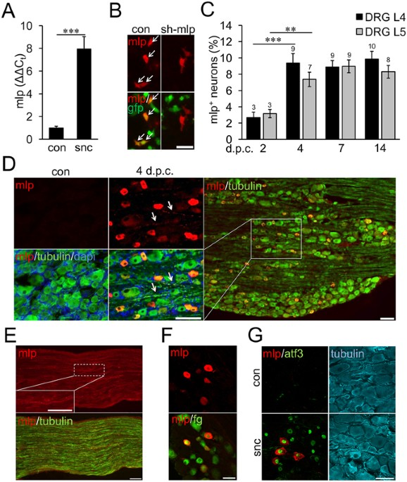 Nociceptive DRG neurons express muscle lim protein upon axonal ...