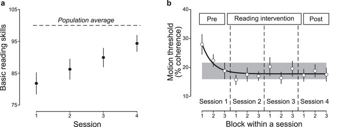 The causal relationship between dyslexia and motion perception ...