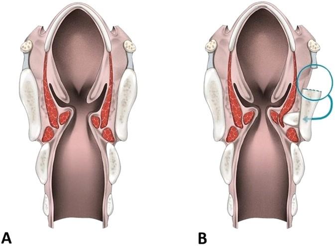 Autologous thyroid cartilage graft implantation in medialization ...