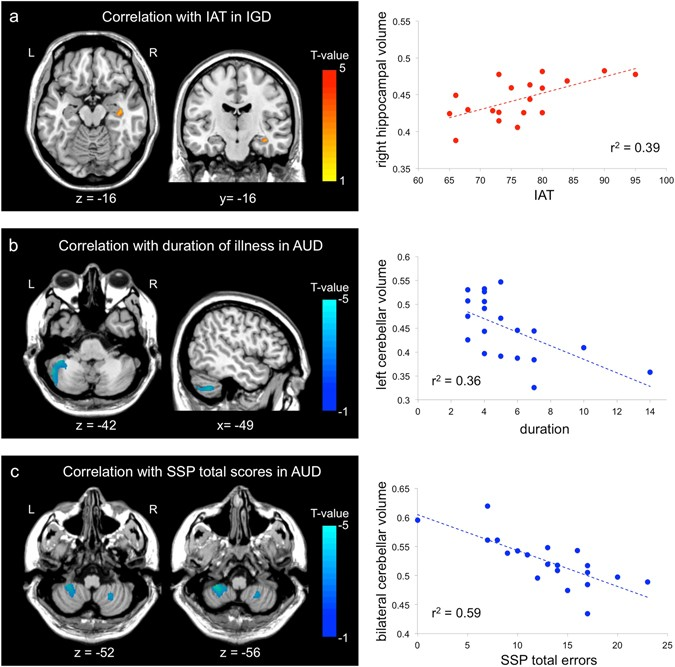 Altered Hippocampal Volume And Functional Connectivity In Males With