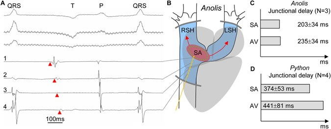 Morpho functional characterization of the systemic venous pole of figure 3 ccuart Images