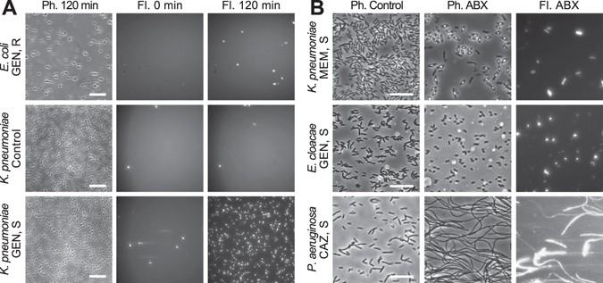 Rapid Phenotypic Stress Based Microfluidic Antibiotic Susceptibility