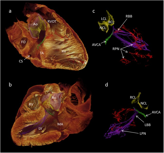 High Resolution 3 Dimensional Imaging Of The Human Cardiac