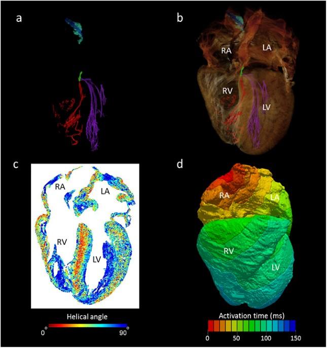 High resolution 3-Dimensional imaging of the human cardiac ...