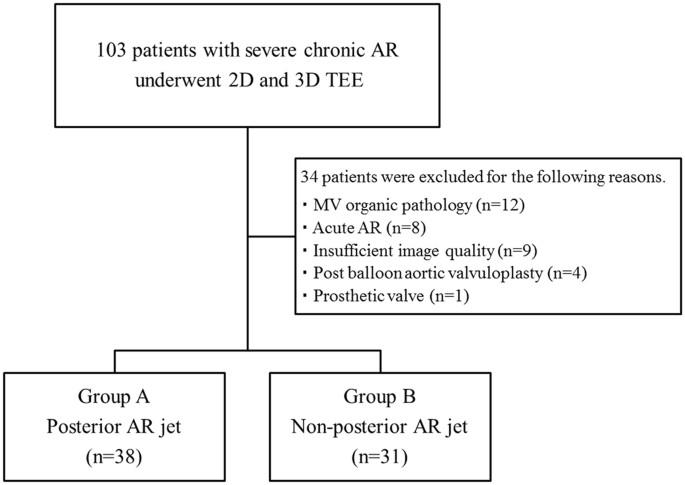 Effect of aortic regurgitant jet direction on mitral valve leaflet