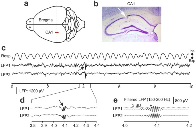 Hippocampal sharp wave ripples in awake mice are entrained by recording sites and raw data examples of simultaneous recordings of local field potentials lfps in the awake mouse a schematic drawing of the top view ccuart Gallery
