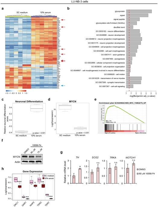 465c73725a Neuroblastoma patient-derived xenograft cells cultured in stem-cell ...