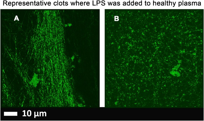Lipopolysaccharide Binding Protein Lbp Reverses The Amyloid State