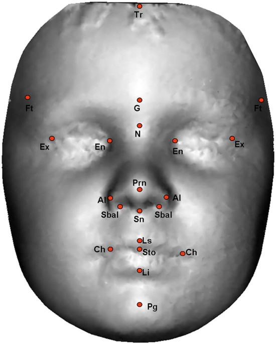 In Light Of Autism Comments White House >> Hypermasculinised Facial Morphology In Boys And Girls With Autism