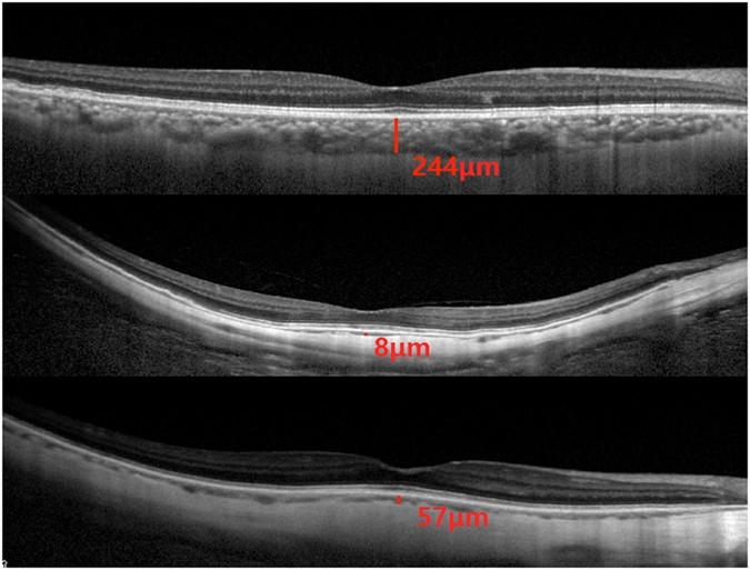 Cross Sectional Imaging Of The Choroid Using Enhanced Depth Optical Coherence Tomography OCT Subfoveal Choroidal Thickness Was Defined As