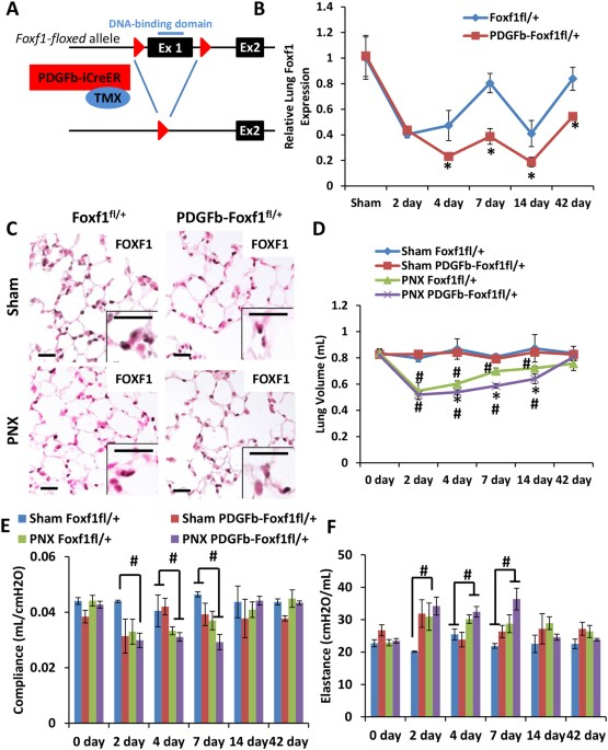 Foxf1 Transcription Factor Promotes Lung Regeneration After Partial