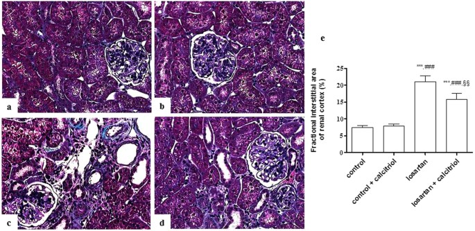 Calcitriol Reduces Kidney Development Disorders In Rats Provoked By Losartan Administration During Lactation Scientific Reports