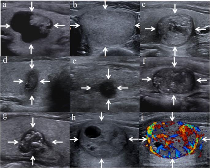 Malignancy Risk Stratification Of Thyroid Nodules