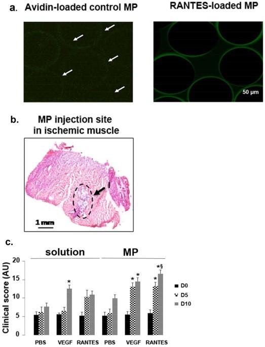 Pro Angiogenic Effect Of Rantes Loaded Polysaccharide Based