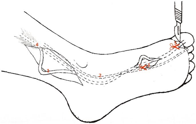 Anatomical Study Of The Neurovascular In Flexor Hallucis Longus