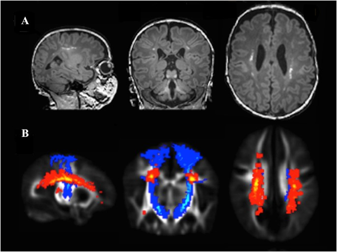 Common Cerebral White Matter >> Punctate White Matter Lesions Associated With Altered Brain