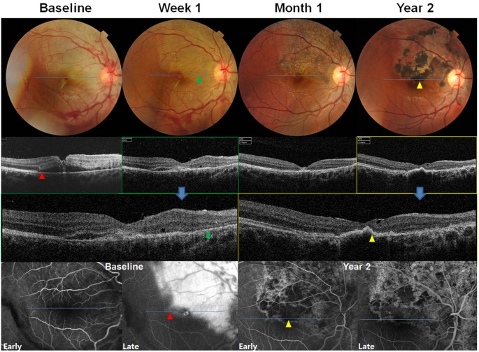 Fundus Photographs Top And Optical Coherence Tomography OCT Middle Images Showing Microscopic Structural Changes In The Eye With Retinal Pigment