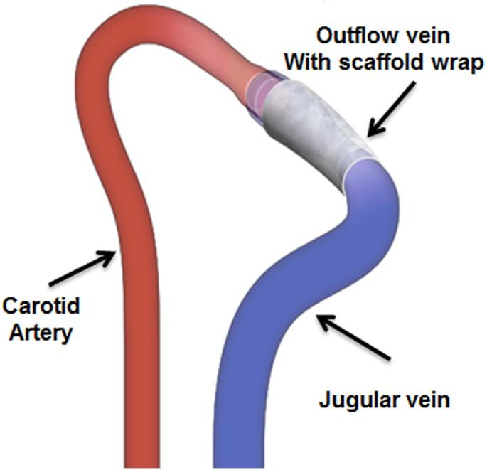 Cormatrix Wrapped Around The Adventitia Of The Arteriovenous Fistula