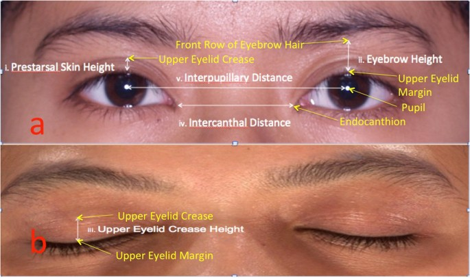 The Prevalence of Double Eyelid and the 3D Measurement of