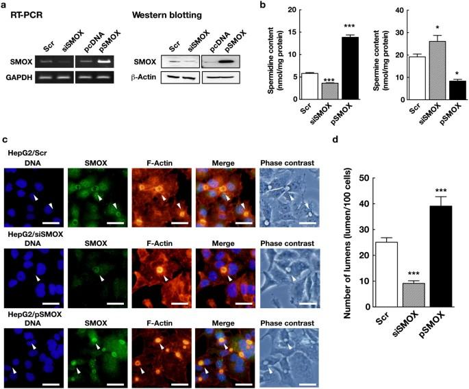 Spermine Oxidase Promotes Bile Canalicular Lumen Formation Through