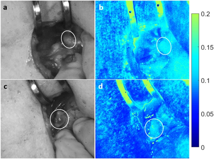 Intraoperative Assessment Of Parathyroid Viability Using Laser