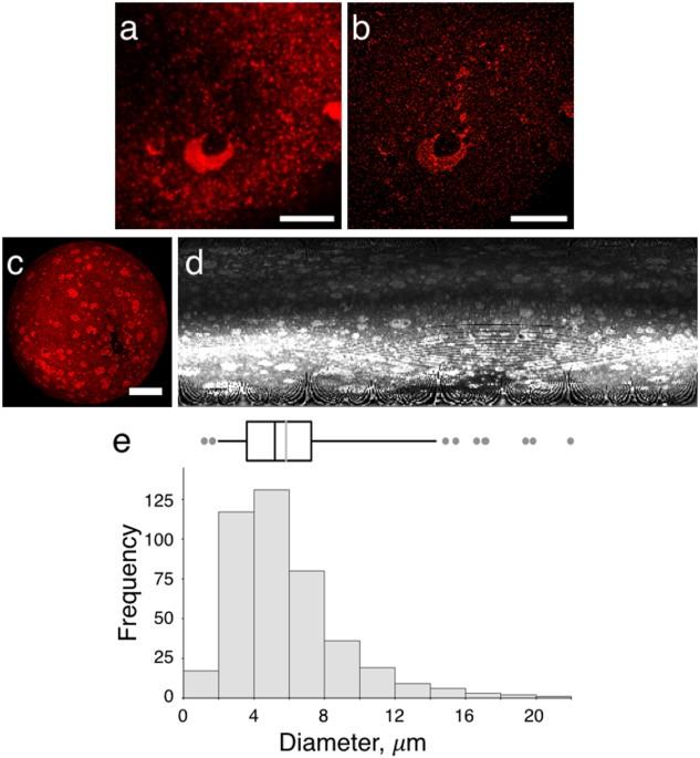 Visualization of lipid directed dynamics of perilipin 1 in human ...