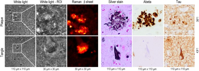 hyperspectral raman imaging of neuritic plaques and neurofibrillary tangles in brain tissue from