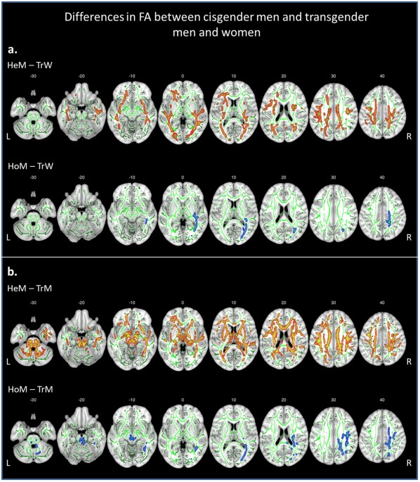 female brain wiring diagram