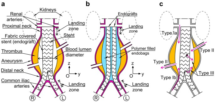 deformation and dynamic response of abdominal aortic