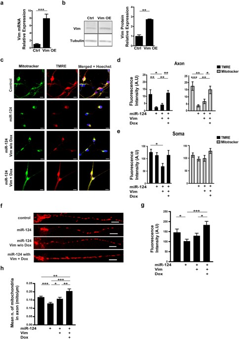 High content image analysis reveals function of mir 124 upstream of primary motor neurons of control mir 124 overexpression alone or transduced in addition with lentiviral vector for doxycyclin dependent expression of vim ccuart Images