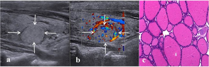 A Proposal To Stratify The Intermediate Risk Thyroid Nodules