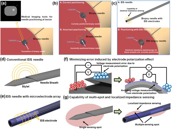 Biopsy Needle Integrated With Electrical Impedance Sensing