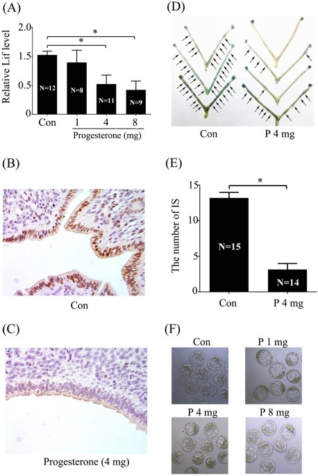 Effects of excess P on embryo implantation and implantation-related genes.  (A) The mRNA expression of Lif in mouse day 4 uteri treated with oil or  different ...