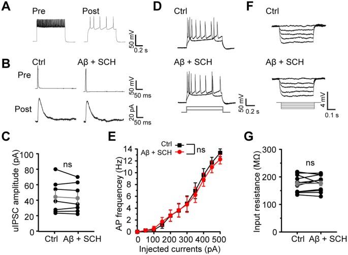 amyloid β causes excitation inhibition imbalance through dopamine
