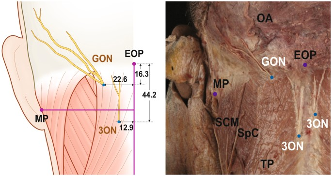 Stereotactic Topography Of The Greater And Third Occipital Nerves