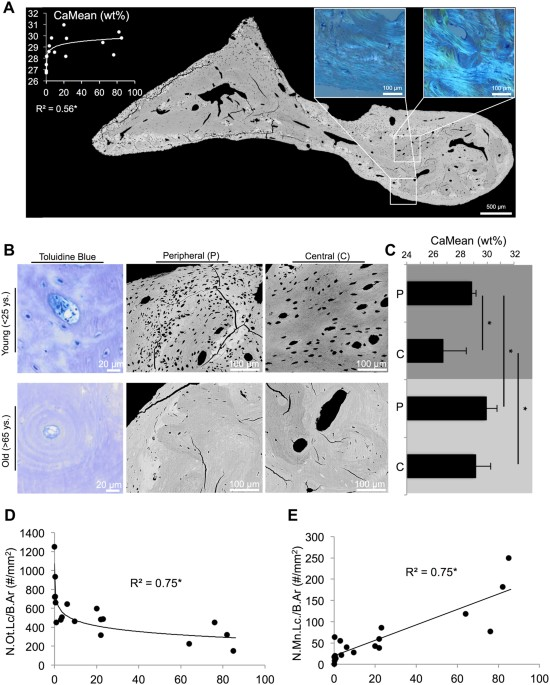 Early Bone Tissue Aging In Human Auditory Ossicles Is Accompanied By