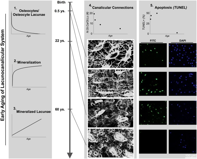 Early bone tissue aging in human auditory ossicles is accompanied by ...