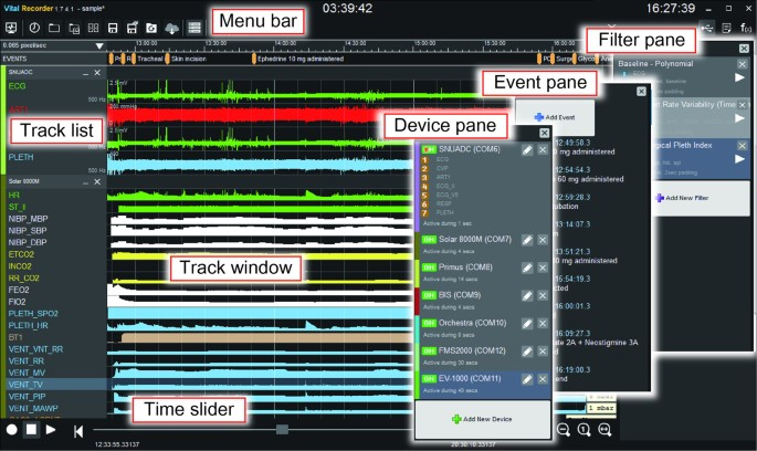 Vital Recorder—a free research tool for automatic recording
