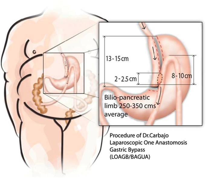 Evaluation Of Weight Loss Indicators And Laparoscopic One