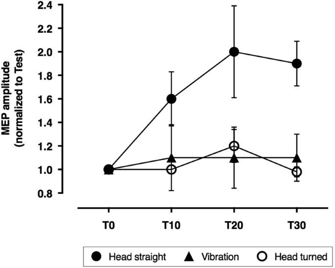 Abnormal Cerebellar Processing Of The Neck Proprioceptive
