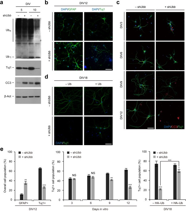 Temporal downregulation of the polyubiquitin gene ubb affects figure 2 sciox Gallery