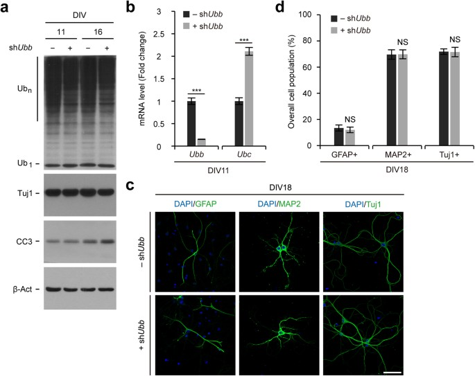 Temporal downregulation of the polyubiquitin gene ubb affects figure 3 sciox Gallery