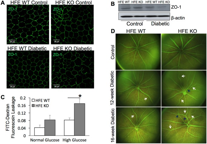 altered outer and inner retinal barrier function in diabetic hfe ko mice a tight junction protein zonula occludin 1 zo 1 immunofluorescence in retinal - Pooldesignideen Fr Kleine Hfe